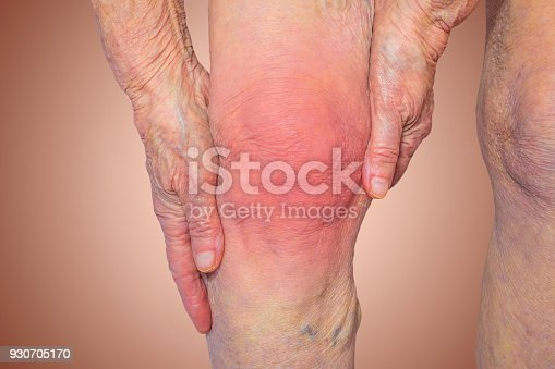 istock Senior woman holding the knee with pain 930705170