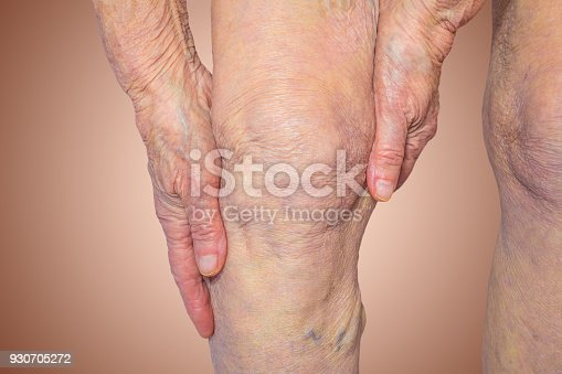 istock Senior woman holding the knee with pain 930705272