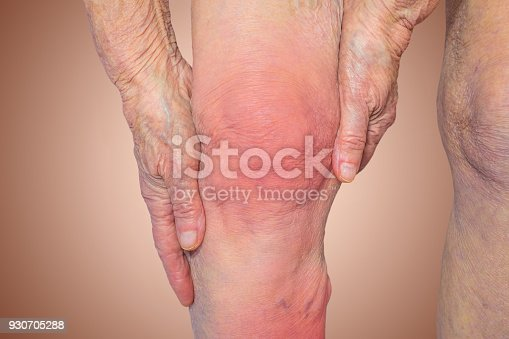 698466046istockphoto Senior woman holding the knee with pain 930705288