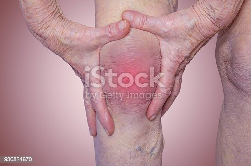 698466046istockphoto Senior woman holding the knee with pain 930824670