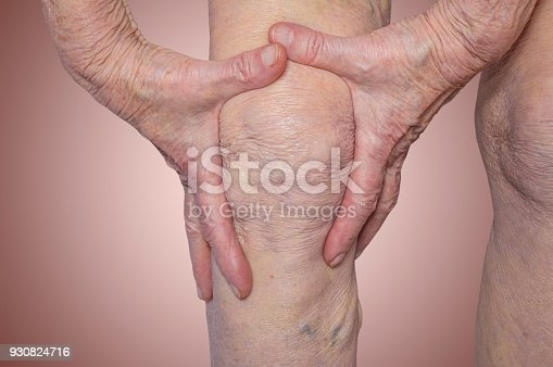 875123630 istock photo Senior woman holding the knee with pain 930824716
