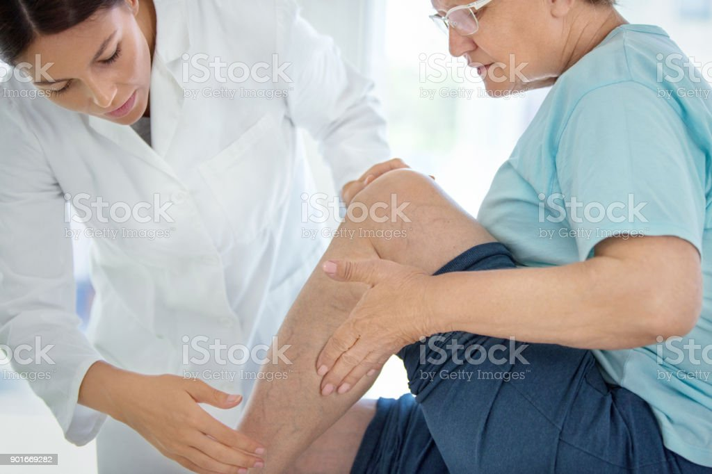 Senior woman in a massage treatment. Closeup side view of  female doctor massaging legs and calves of a senior female patient with visible varicose veins. 50-59 Years Stock Photo