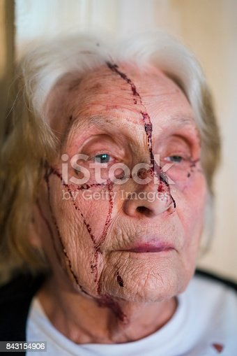 istock Senior woman in blood after breaking nose 843154906