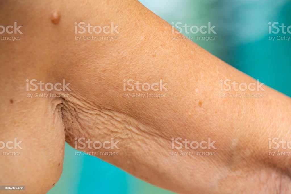 Senior woman raising her wrinkled inside part of the arm, Wrinkled...