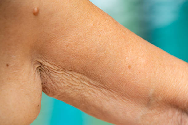 Senior woman raising her wrinkled inside part of the arm, Wrinkled armpit, Mole, Blue swimming pool background, Body concept, Close up stock photo