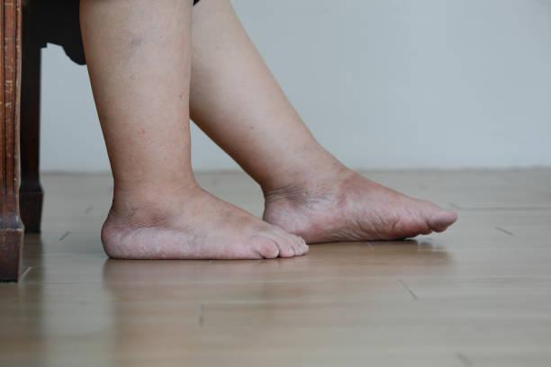 Seniorin geschwollene Füße und Bein – Foto
