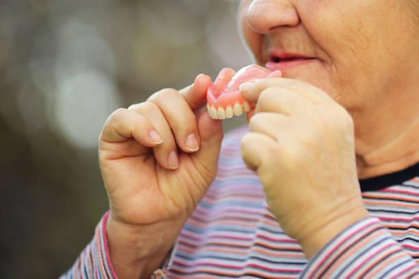 Senior woman taking the teeth out stock photo