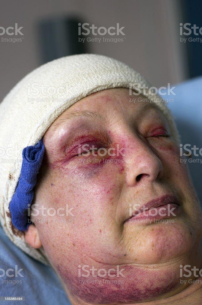 Senior woman two days after brain tumour craniotomy stock photo
