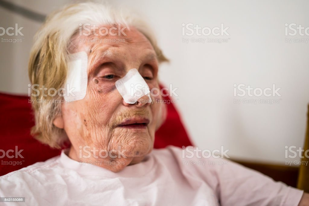Senior woman with bandage on her nose and head. she is in shock after...