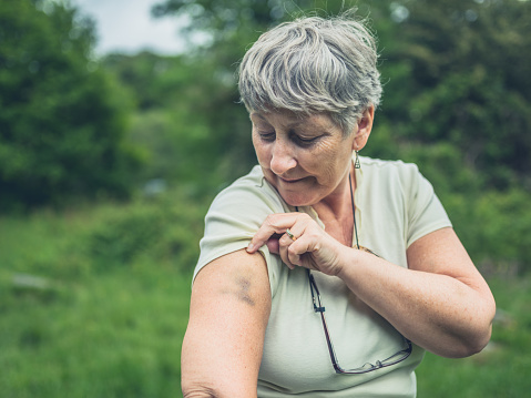 istock Senior woman with bruise on her arm 810846692