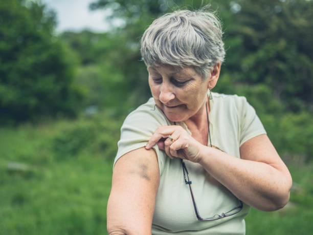 senior vrouw met blauwe plekken op haar arm - blauwe plek stockfoto's en -beelden