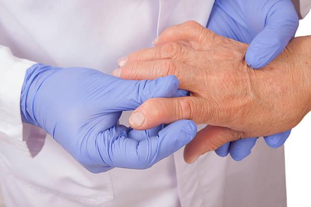 donna anziana con artrite reumatoide visita a un medico - artrite foto e immagini stock