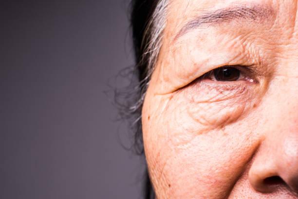 Das Auge der Seniorin – Foto