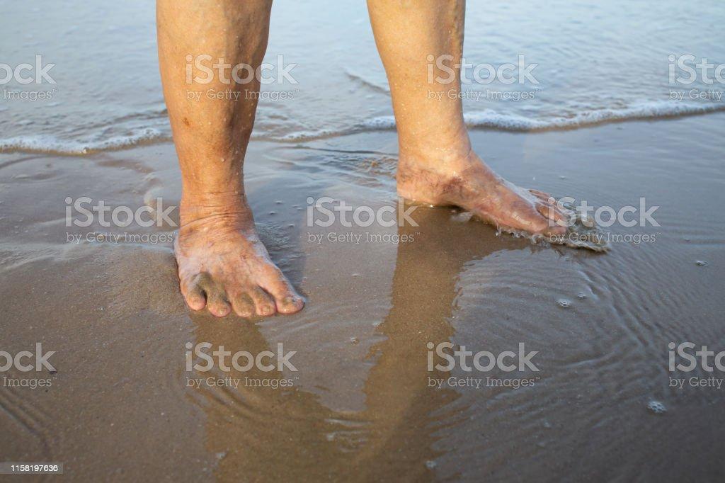 varicose beach)