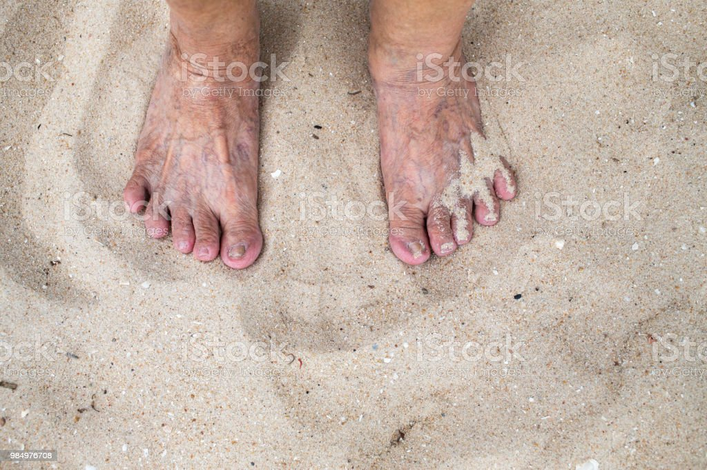 Senior Womans Foot Are Standing On Sandy Beach Varicose Veins On