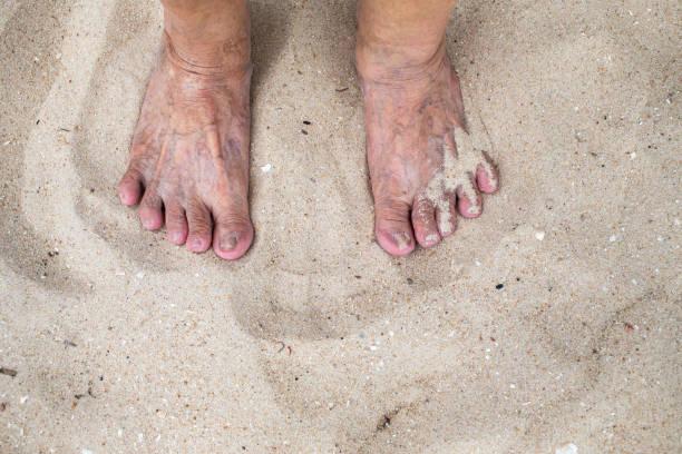 ältere frau fuß stehen auf sandigen strand, krampfadern auf haut - granny legs stock-fotos und bilder
