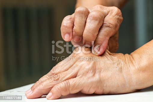istock Senior Woman's right hand pinching her left hand, On white table background, Close up shot, Asian Body skin part, Healthcare concept 1159377189