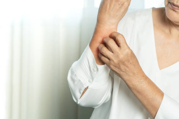 senior women scratch hand the itch on eczema arm, healthcare and medicine concept stock photo