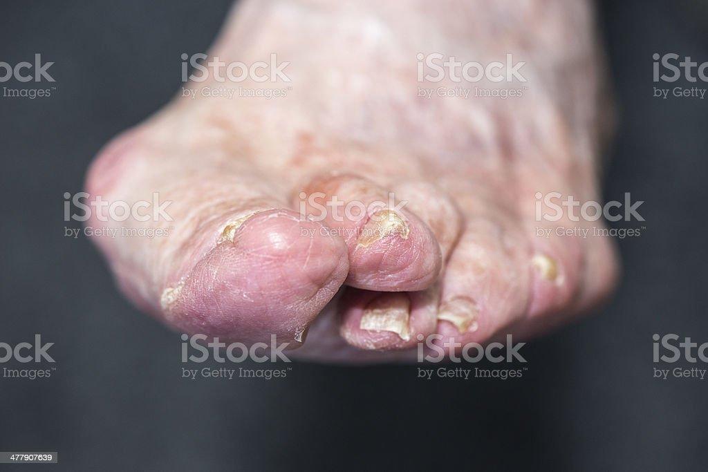 Senior women's foot problems stock photo