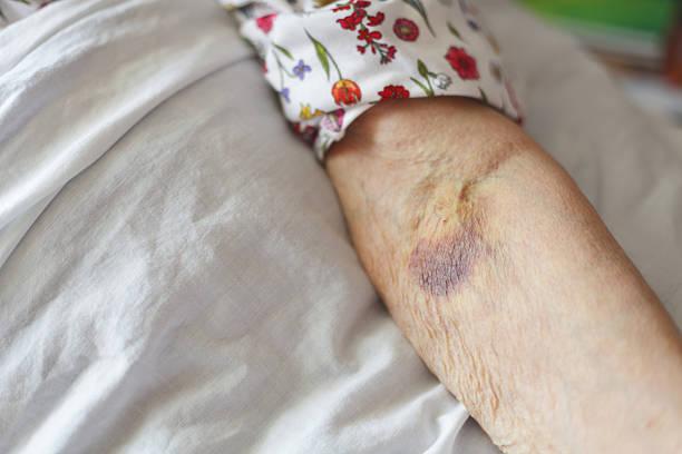 Senior's Arm With Bruise. stock photo
