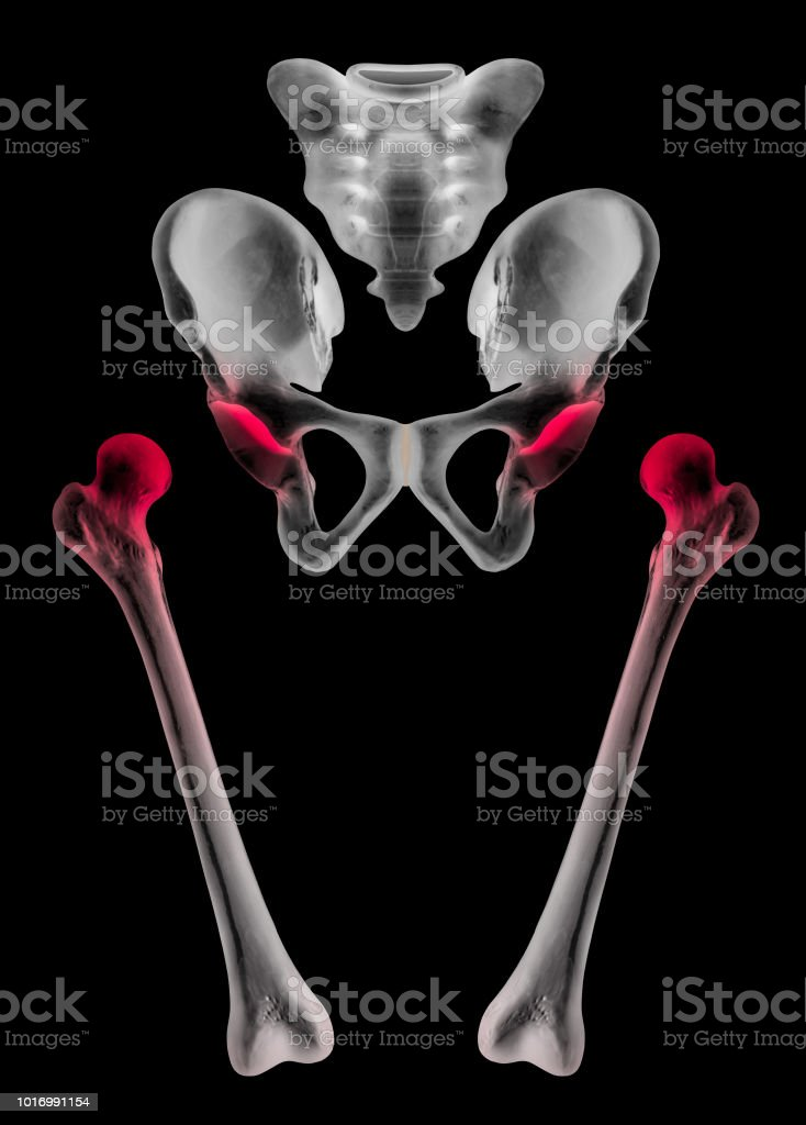 Separate Human Bones Of Hip And Lower Limb With Red Highlight On