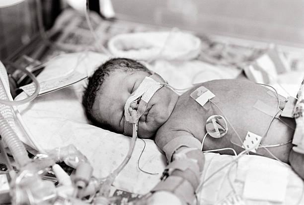 Sepia picture of a premature baby stock photo
