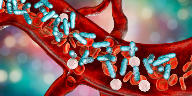 Sepsis, bacteria in blood stock photo