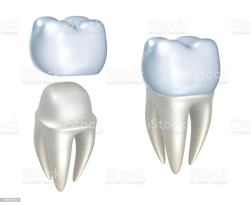 Sequential images of dental crowns and tooth stock photo