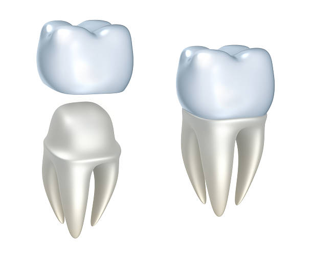 Sequential images of dental crowns and tooth Dental crowns and tooth, isolated on white  tooth crown stock pictures, royalty-free photos & images
