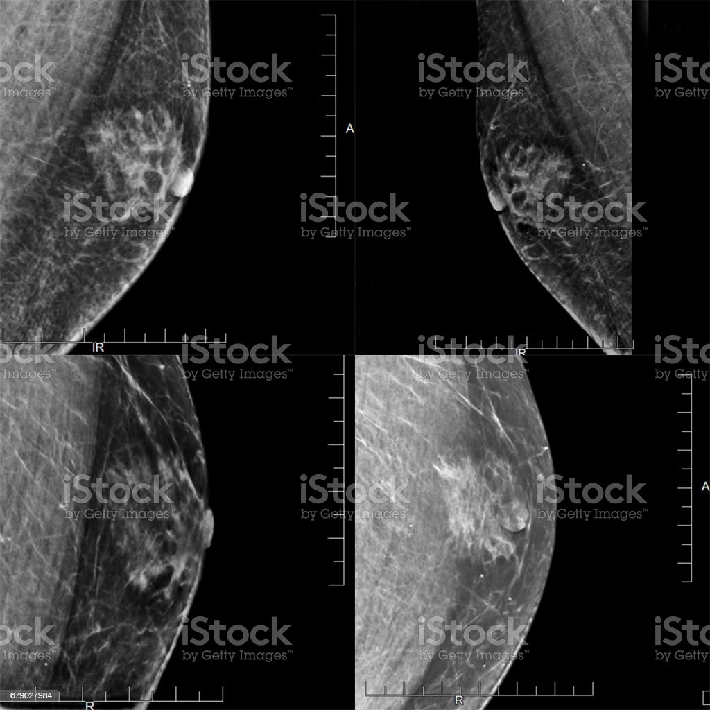 A Series of Four Mammogram images Showing a Male Patient's Gynecomastia (Benign Tumor). stock photo