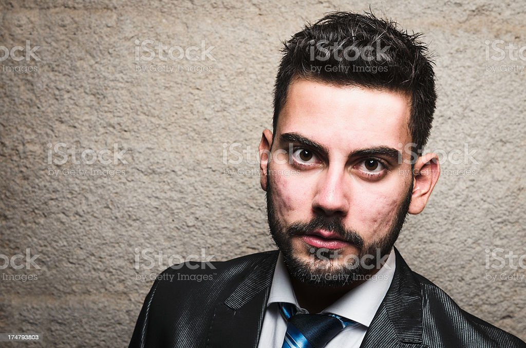 Serious business person with acne on face royalty-free stock photo