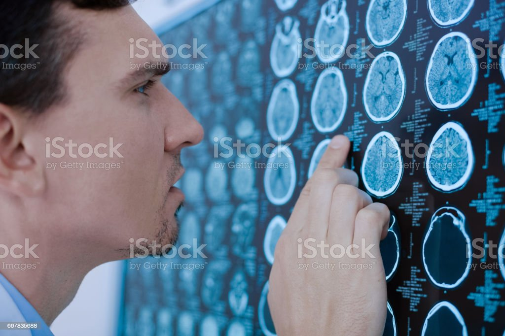 Serious handsome doctor examining X ray photo stock photo