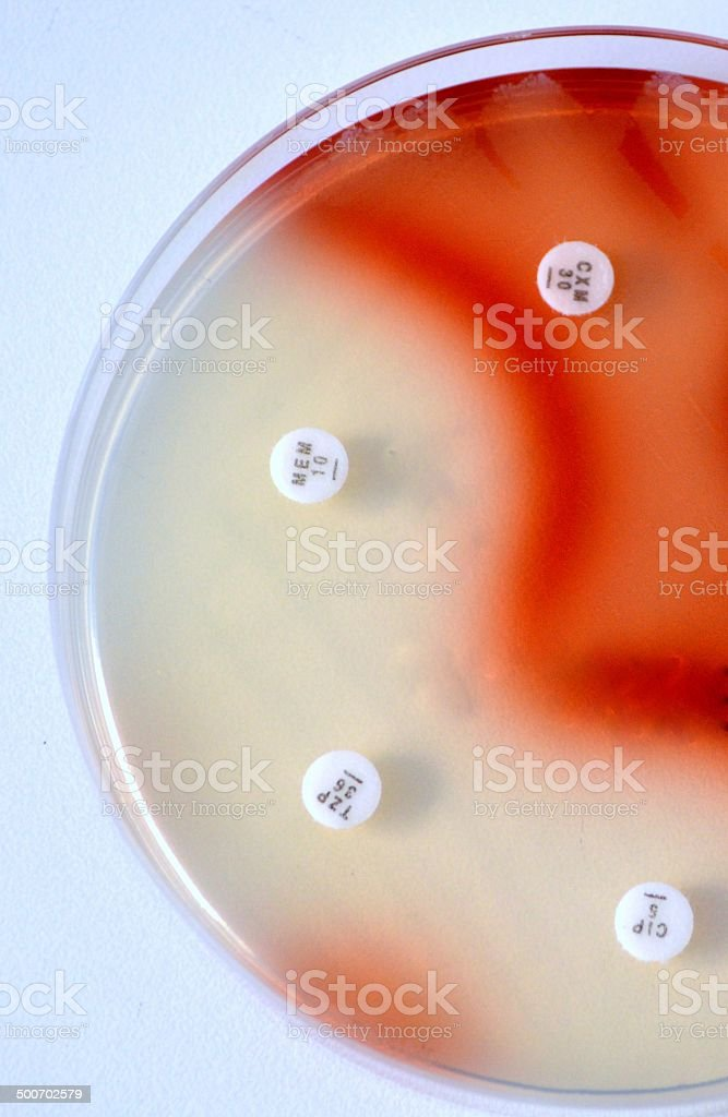 Serratia marcescens. Finding the right antibiotic for treatment. royalty-free stock photo