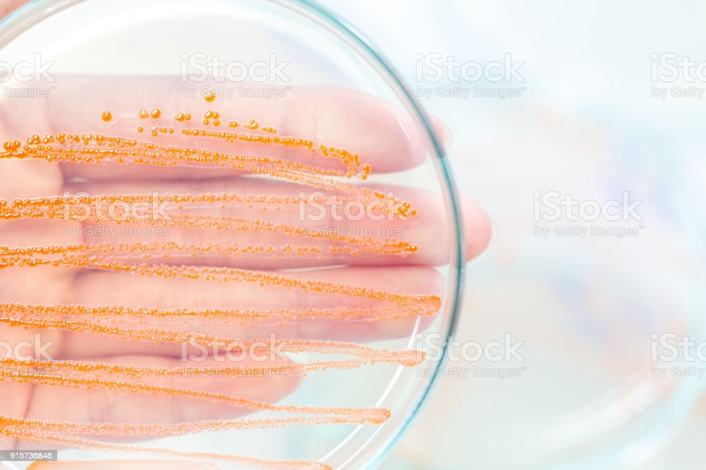 Serratia marcescens is a species of rod-shaped gram-negative bacteria in the family Enterobacteriaceae for Laboratory microbiology. stock photo