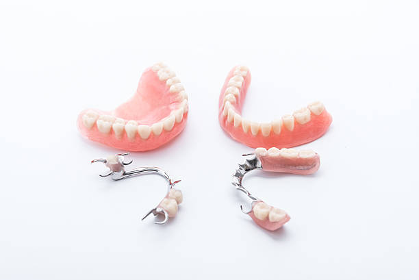 Groupe de prothèses dentaires sur fond blanc - Photo