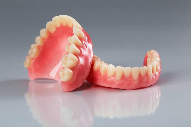 Ensemble de prothèses dentaires - Photo