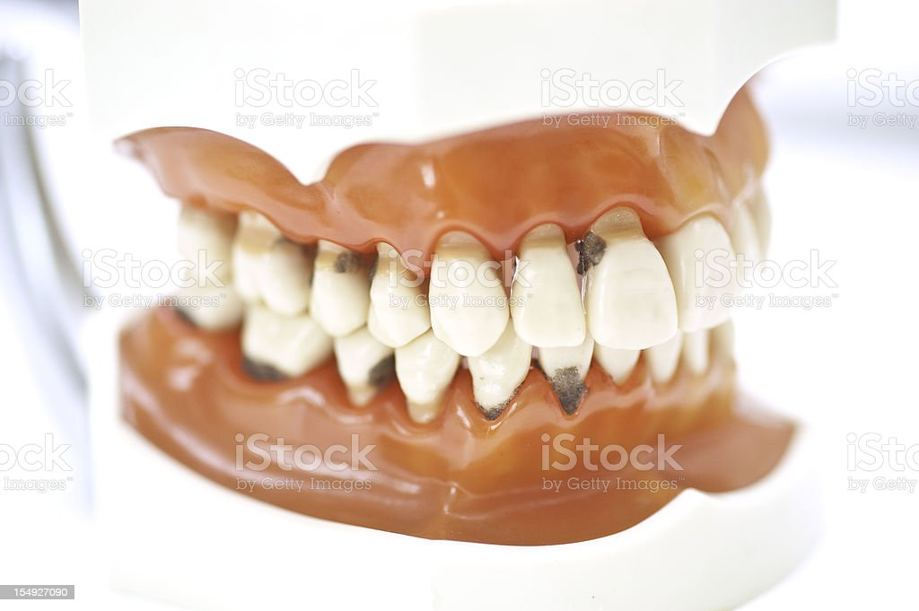 set of teeth with caries stock photo