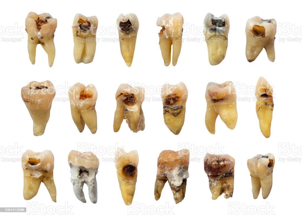 齲蝕 歯の弗素症歯石と歯のセットです孤立した背景 - エナメルの ...