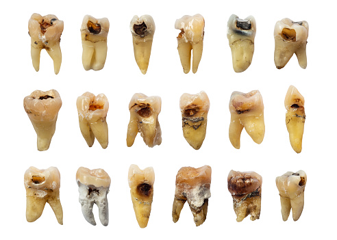 istock Set of teeth with dental caries ( tooth decay ) , fluorosis and calculus . isolated background 1091312696