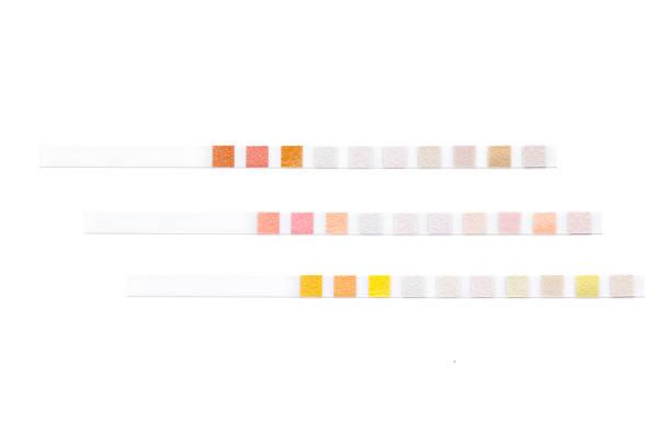 Set of test strips stock photo