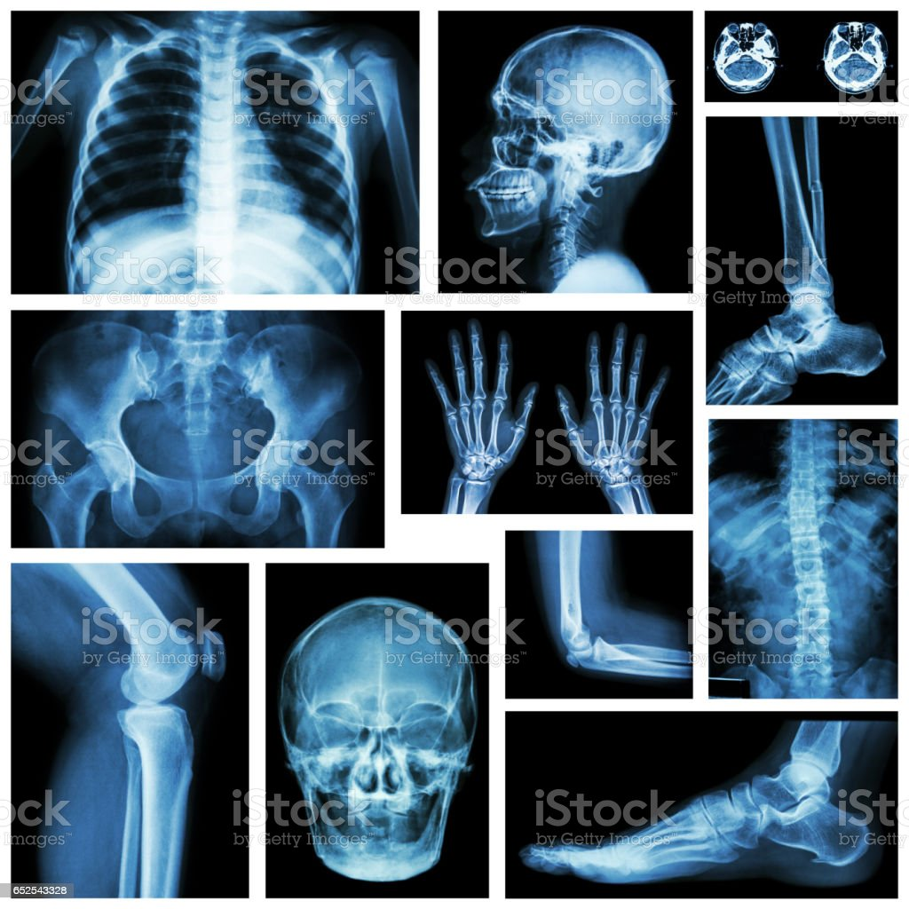 Set of x-ray multiple part of human . Skeletal system stock photo