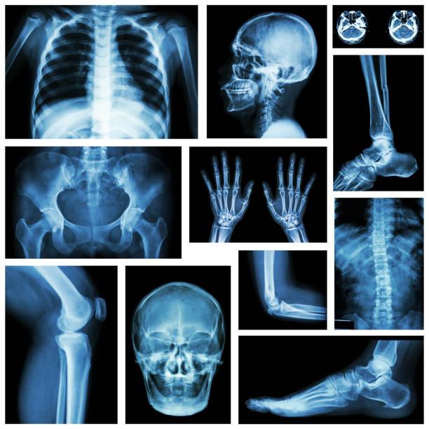 eingestellt von x-ray mehrere teile des menschen. skelett-systems - skelett hand stock-fotos und bilder