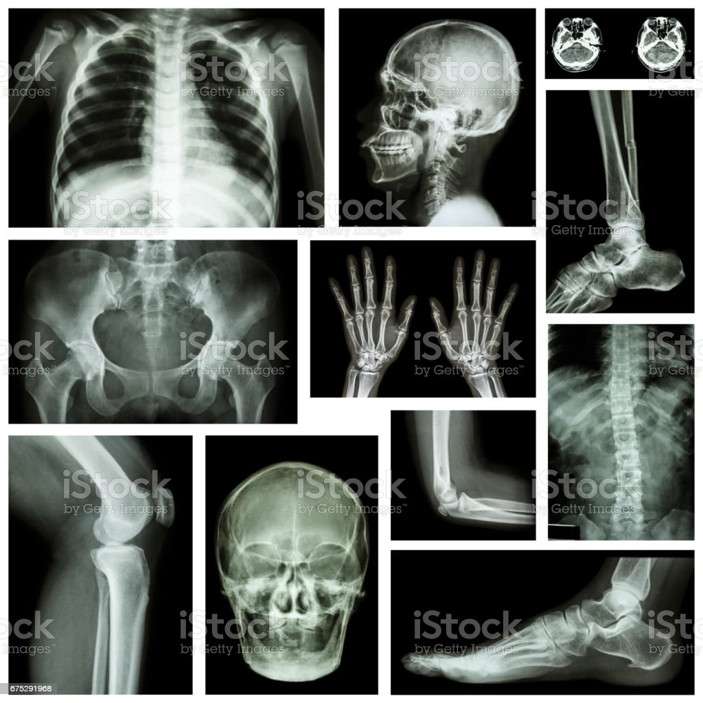 Set of x-ray multiple part of human . Skeletal system . stock photo