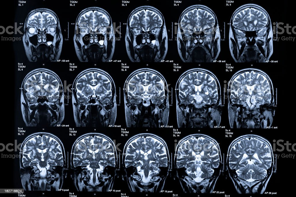 Several images of different MRI scans in human heads royalty-free stock photo