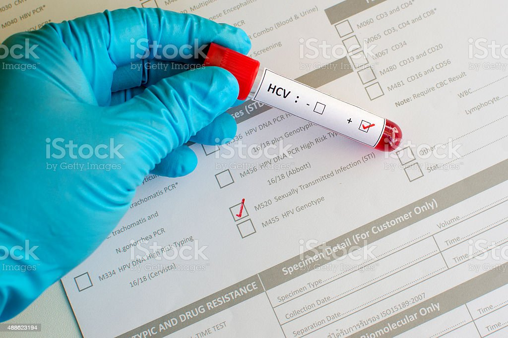 Sexually transmitted diseases: Hepatitis C virus (HCV) stock photo