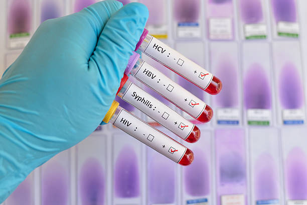 Sexually transmitted diseases: HIV, HBV, HCV, Syphilis Blood sample positive with sexually transmitted diseases: HIV, HBV, HCV, Syphilis sexually transmitted disease stock pictures, royalty-free photos & images