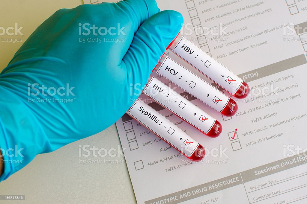 Sexually transmitted diseases stock photo