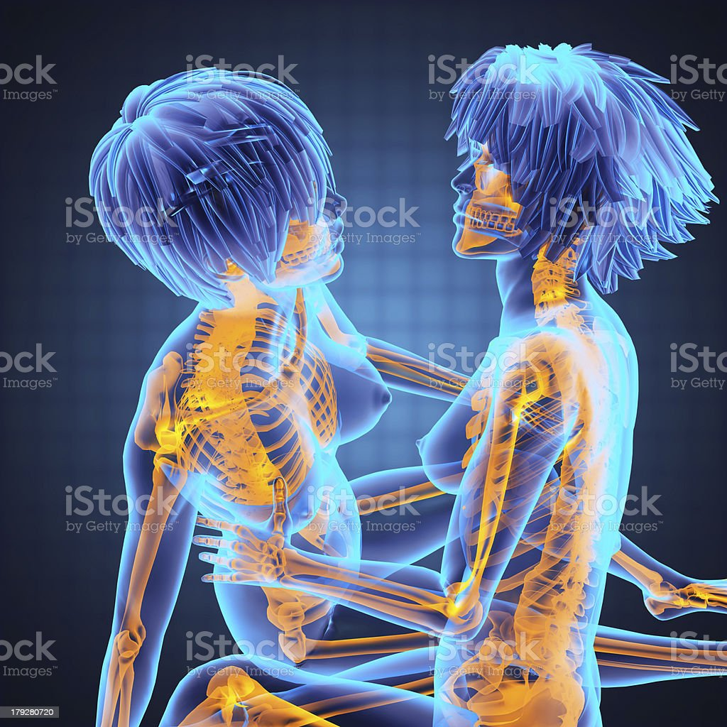 Sexy Lesbians In Radiography Scan Stock Photo - Download