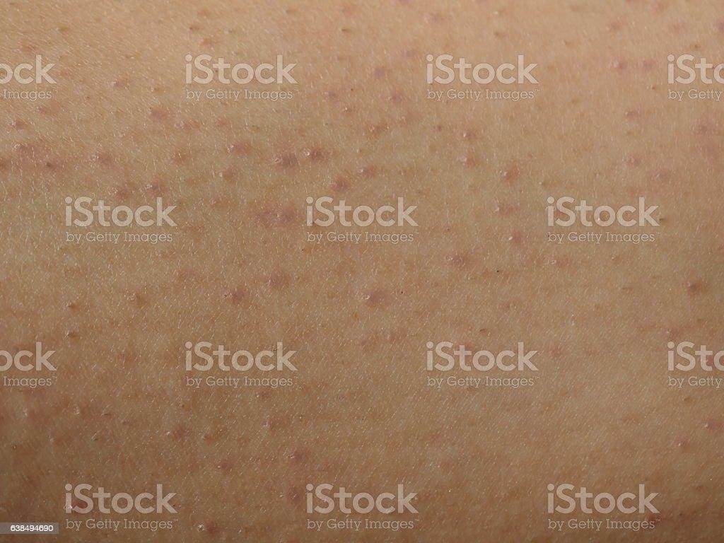 Shaving Bumps closeup stock photo
