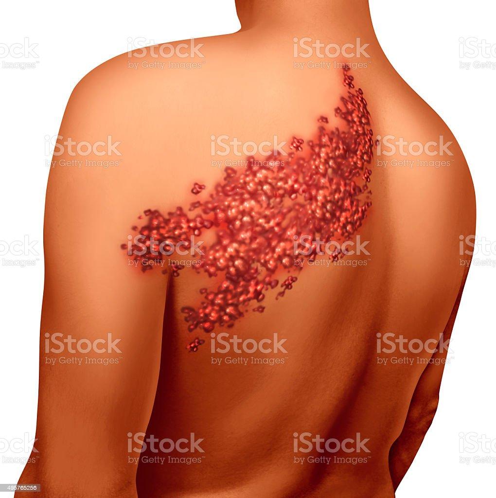 Shingles Disease stock photo